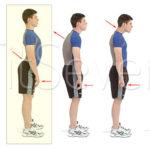 Как исправить передний наклон таза —упражнения для улучшения осанки